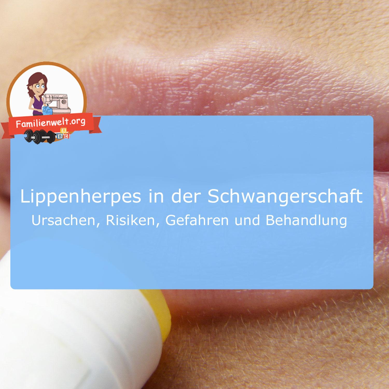 Lippenherpes Anzeichen Schwangerschaft